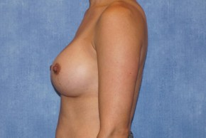 After Photo - Breast Augmentation - Case #14689 - Subpectoral Breast Surgery - Lateral View