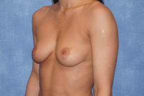 Before Photo - Breast Augmentation - Case #14691 - Silicone Implants - Oblique View