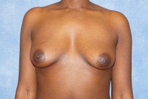 Before Photo - Breast Augmentation - Case #14692 - Subglandular Breast Surgery - Frontal View