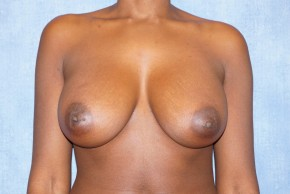 After Photo - Breast Augmentation - Case #14692 - Subglandular Breast Surgery - Frontal View