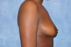 Before Photo - Breast Augmentation - Case #14692 - Subglandular Breast Surgery - Lateral View