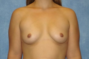 Before Photo - Breast Augmentation - Case #14704 - Subglandular Breast Surgery - Frontal View