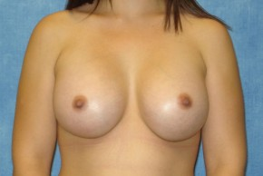 After Photo - Breast Augmentation - Case #14704 - Subglandular Breast Surgery - Frontal View