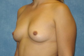 Before Photo - Breast Augmentation - Case #14704 - Subglandular Breast Surgery - Oblique View