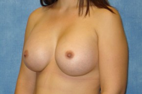 After Photo - Breast Augmentation - Case #14704 - Subglandular Breast Surgery - Oblique View