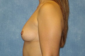 Before Photo - Breast Augmentation - Case #14704 - Subglandular Breast Surgery - Lateral View
