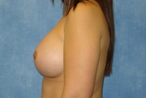 After Photo - Breast Augmentation - Case #14704 - Subglandular Breast Surgery - Lateral View