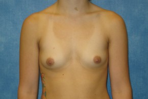 Before Photo - Breast Augmentation - Case #14706 - Saline Implants - Frontal View