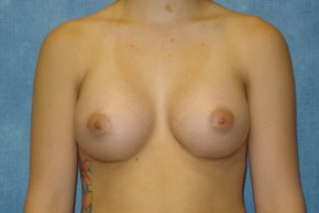 After Photo - Breast Augmentation - Case #14706 - Saline Implants - Frontal View