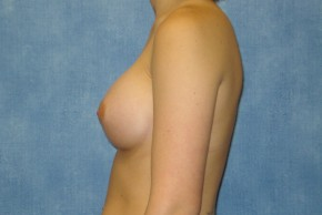 After Photo - Breast Augmentation - Case #14706 - Saline Implants - Lateral View