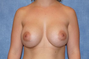 After Photo - Breast Augmentation - Case #14707 - Silicone Implants - Frontal View