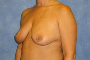 Before Photo - Breast Augmentation - Case #14708 - Subpectoral Breast Surgery - Oblique View