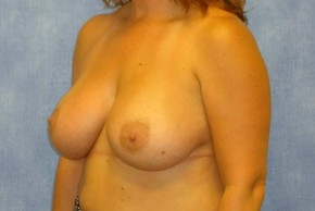 After Photo - Breast Augmentation - Case #14708 - Subpectoral Breast Surgery - Oblique View