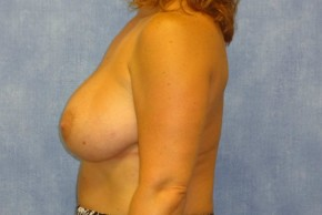 After Photo - Breast Augmentation - Case #14708 - Subpectoral Breast Surgery - Lateral View