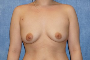 Before Photo - Breast Augmentation - Case #14709 - Saline Implants - Frontal View