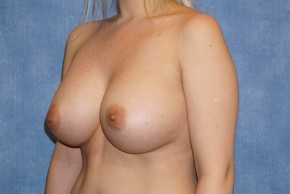 After Photo - Breast Augmentation - Case #14709 - Saline Implants - Oblique View