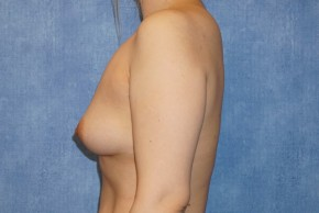 Before Photo - Breast Augmentation - Case #14709 - Saline Implants - Lateral View
