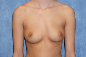 Before Photo - Breast Augmentation - Case #14711 - Silicone Implants - Frontal View