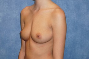 Before Photo - Breast Augmentation - Case #14711 - Silicone Implants - Oblique View