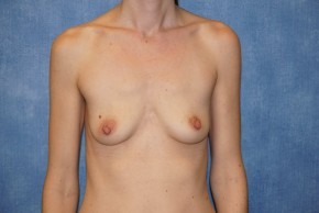 Before Photo - Breast Augmentation - Case #14712 - Subpectoral Breast Surgery - Frontal View