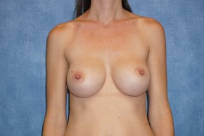 After Photo - Breast Augmentation - Case #14712 - Subpectoral Breast Surgery - Frontal View