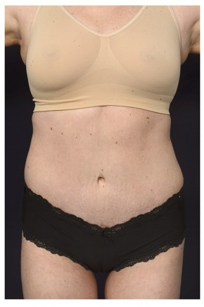 After Photo - Tummy Tuck - Case #14774 - Abdominoplasty - Frontal View