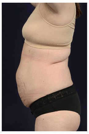 Before Photo - Tummy Tuck - Case #14774 - Abdominoplasty - Lateral View