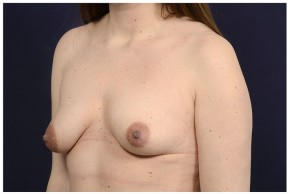 Before Photo - Breast Lift - Case #14775 - Bilateral Mastopexy - Oblique View