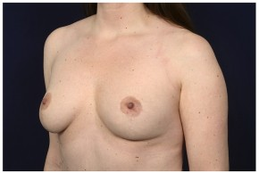 After Photo - Breast Lift - Case #14775 - Bilateral Mastopexy - Oblique View