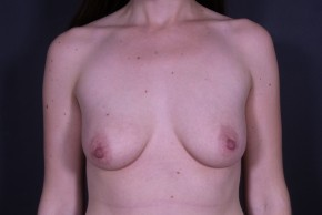 Before Photo - Breast Augmentation - Case #14777 - Subglandular Breast Augmentation with Round Silicone Implants - Frontal View