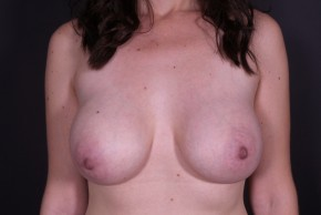 After Photo - Breast Augmentation - Case #14777 - Subglandular Breast Augmentation with Round Silicone Implants - Frontal View