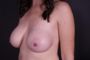 After Photo - Breast Augmentation - Case #14777 - Subglandular Breast Augmentation with Round Silicone Implants - Oblique View