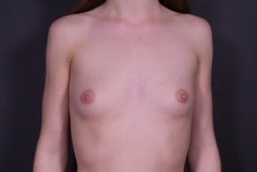 Before Photo - Breast Augmentation - Case #14778 - Submuscular Breast Augmentation with Round Silicone - Frontal View