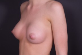 After Photo - Breast Augmentation - Case #14778 - Submuscular Breast Augmentation with Round Silicone - Oblique View