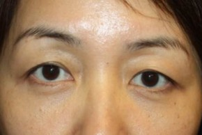 After Photo - Eyelid Surgery - Case #14779 - Blepharoplasty - Lower Lids Only - 43 year old female - Frontal View
