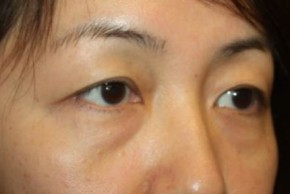 Before Photo - Eyelid Surgery - Case #14779 - Blepharoplasty - Lower Lids Only - 43 year old female - Oblique View
