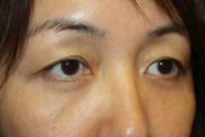 After Photo - Eyelid Surgery - Case #14779 - Blepharoplasty - Lower Lids Only - 43 year old female - Oblique View