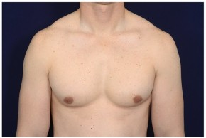 After Photo - Gynecomastia - Case #14781 - Frontal View