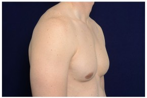 After Photo - Gynecomastia - Case #14781 - Oblique View
