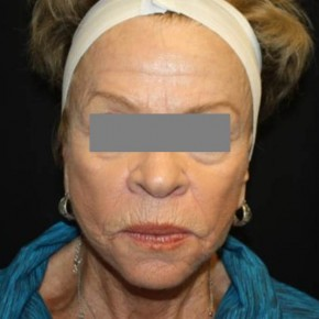 Before Photo - Facial Rejuvenation - Case #14782 - Phenol and Croton Oil Peel - 76 year old female - Frontal View
