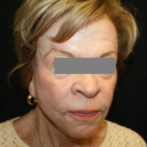 After Photo - Facial Rejuvenation - Case #14782 - Phenol and Croton Oil Peel - 76 year old female - Oblique View