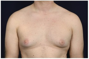 Before Photo - Gynecomastia - Case #14784 - Frontal View