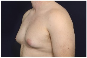 Before Photo - Gynecomastia - Case #14784 - Oblique View