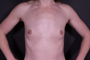 Before Photo - Breast Augmentation - Case #14817 - Breast Augmentation with Shaped Silicone Implants - Frontal View