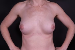 After Photo - Breast Augmentation - Case #14817 - Breast Augmentation with Shaped Silicone Implants - Frontal View
