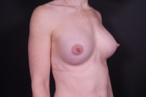 After Photo - Breast Augmentation - Case #14817 - Breast Augmentation with Shaped Silicone Implants - Oblique View