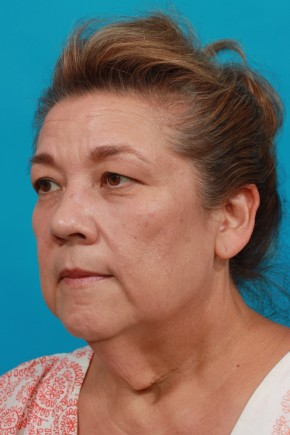 Before Photo - Facial Rejuvenation - Case #14823 - Neck / Lower Face Lift - Oblique View