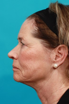 Before Photo - Facial Rejuvenation - Case #14828 - Brow & Face lift - Lateral View