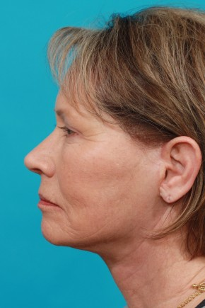 After Photo - Facial Rejuvenation - Case #14828 - Brow & Face lift - Lateral View