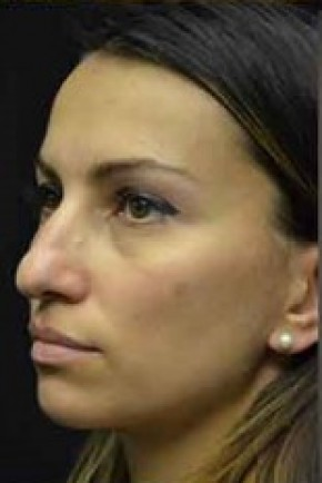 Before Photo - Nose Surgery - Case #14829 - Rhinoplasty  - Oblique View